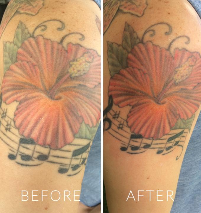 Before & After Tatul Use